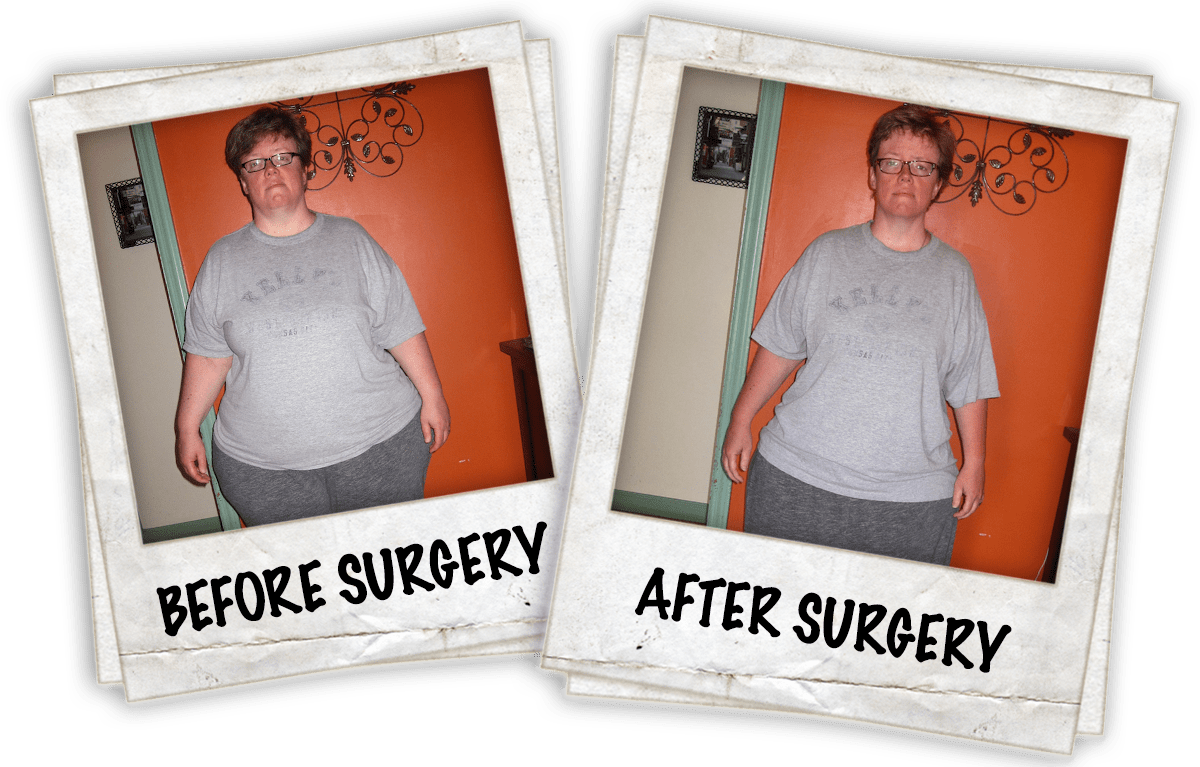 Tricia's Weight Loss Story