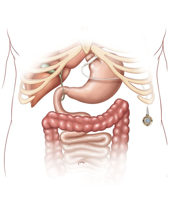 Gastric Band Diagram