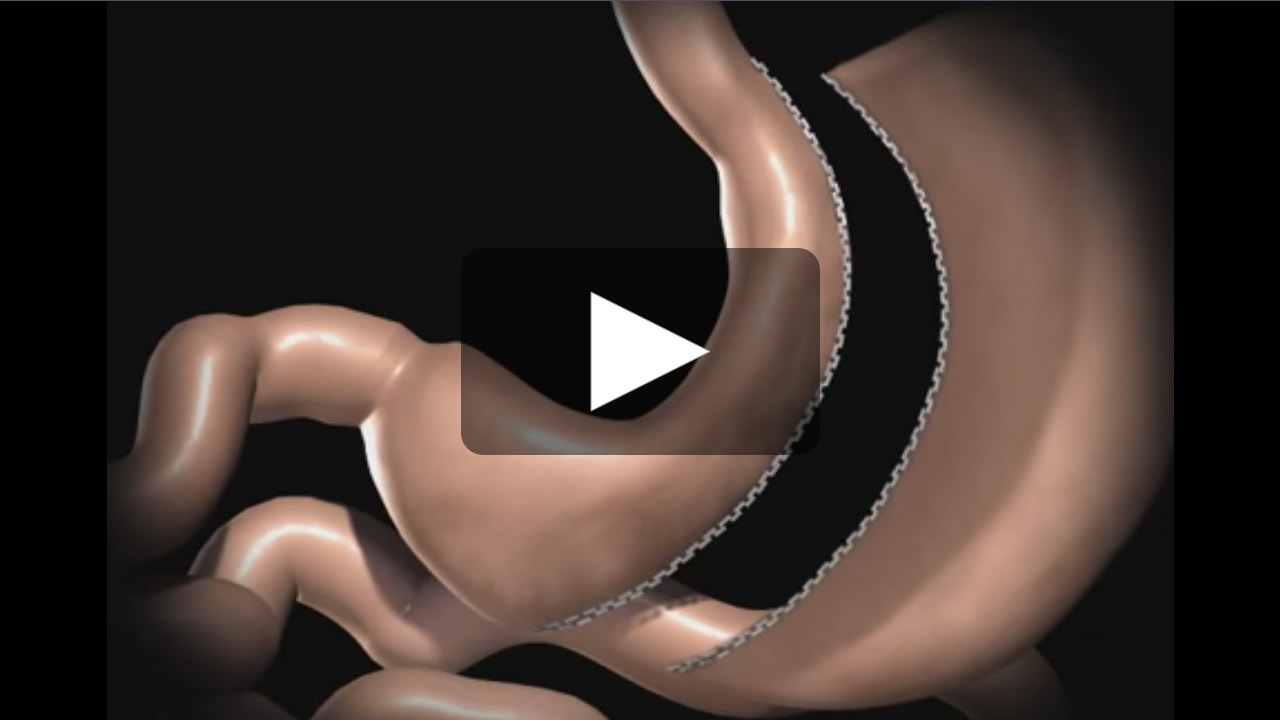 Sleeve Gastrectomy Video